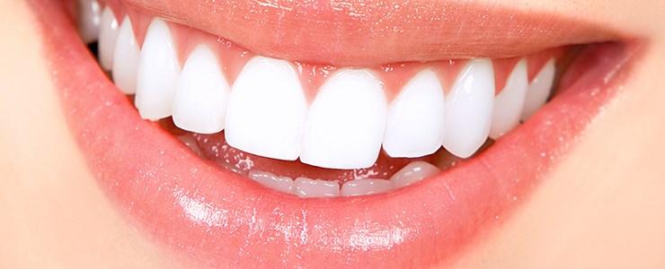 diş beyazlatma, beyaz dişlere sahip olma, diş nasıl beyazlar