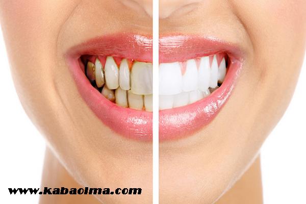 diş beyazlatma yöntemleri, diş nasıl beyazlar, diş beyazlatma uygulamaları