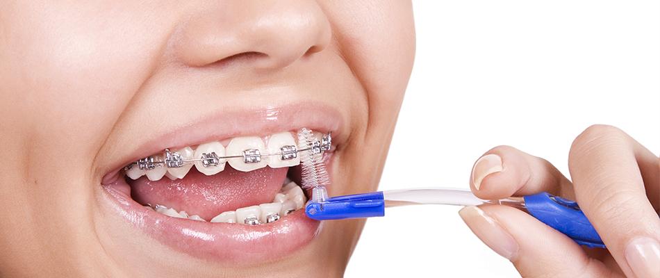ortodonti tedavisi nasıl yapılır, ortodonti nedir, ortodonti tedavisi uygulanan kişiler