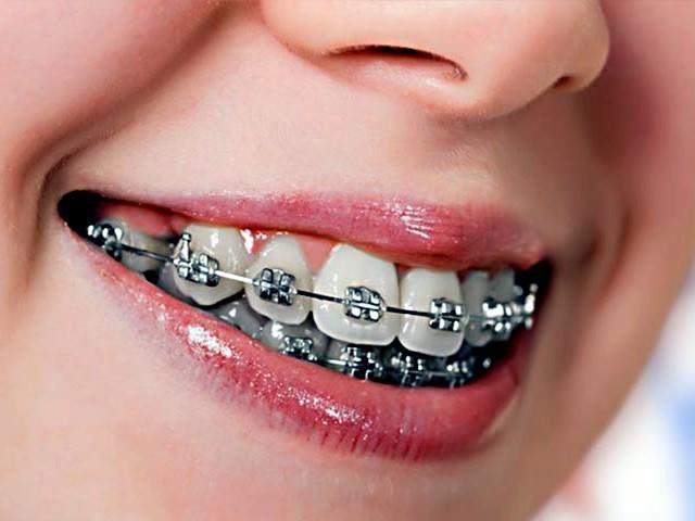 ortodonti nedir, ortodonti tedavisi nedir