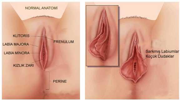 lazerle vajina estetiği, vajina estetiği yapımı, vajina estetiği nedir
