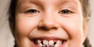 çocuklar için diş teli, çocuk diş teli tipleri, diş teli tipleri nelerdir