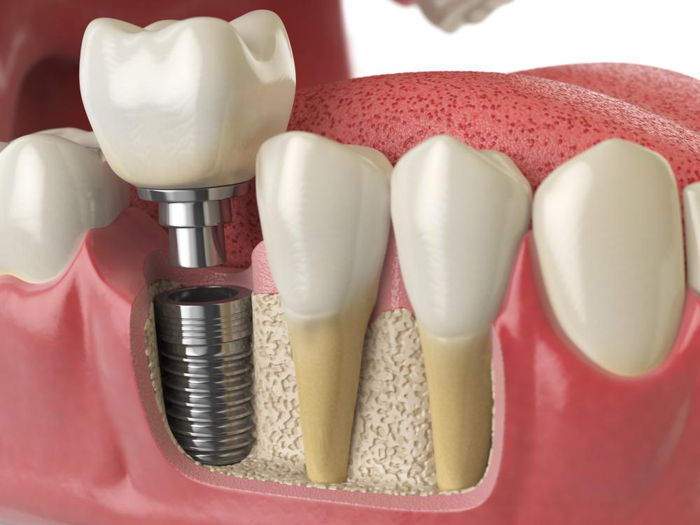 implant ömrü, implant ne kadar kullanılır, implant kaç yıl kullanılır