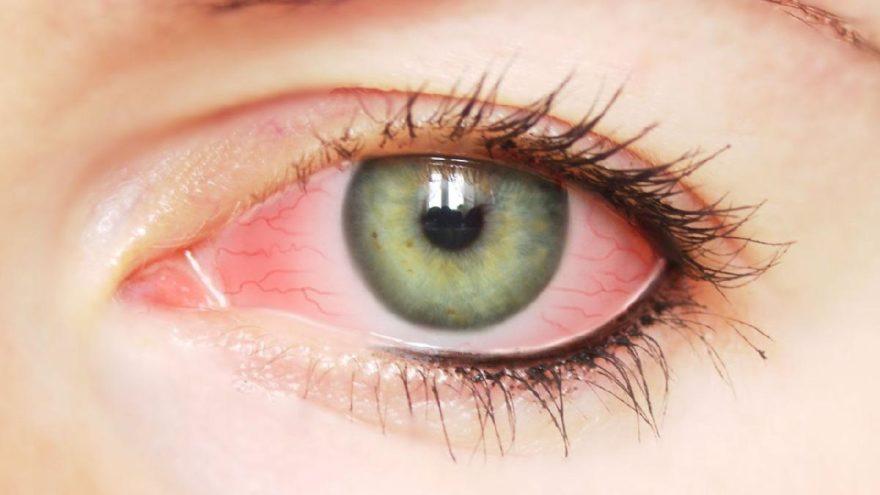 göz nezlesine iyi gelen şeyler, göz nezlesine neler iyi gelir, göz nezlesine bitkisel çözüm