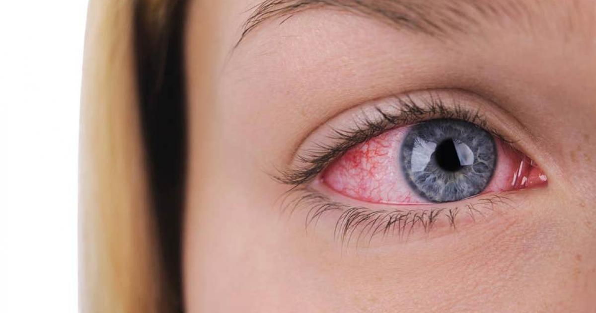 göz tansiyonuna bitkisel çözüm, bitkisel göz tansiyonu tedavisi, göz tansiyonu için bitkisel tedavi