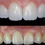 zirkonyum diş fiyatları, zirkonyum diş yapımı, zirkonyum diş fiyatları ne kadar