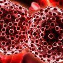 Hepatit B HIV'den Daha Bulaşıcı Dünya Sağlık Örgütü (WHO), 28 Temmuz Dünya Hepatit Günü etkinlikleri kapsamında her yıl farkındalık artırma etkinlikleri düzenlemektedir. Hepatite karşı mücadele, özellikle dünya çapında insan sağlığını tehdit eden en ciddi hastalıklardan biri olarak kabul edilen B ve C türleri büyük önem taşımaktadır. Kronik hepatit dünya çapında hem mali hem de ahlaki açıdan sosyal bir sorun olarak algılanmaktadır. Yeni nesilde hepatit B ve C virüslerinin görülme sıklığındaki düşüş memnuniyetle karşılanan bir gelişmedir. Hastalığın çok iyi bilinmesinin yanı sıra nasıl bulaştığının anlaşılması, taranması ve alınacak önlemlerin açıklanması da bu gelişime katkıda bulunan faktörlerden bazılarıdır. Kronik hepatit ve riskleri Hepatit A kronikleşmeyen ve anneden bulaşmayan bir tür iken; Kanda hepatit B, C, D virüsü bulunan kişilerde bu virüs kanda altı aydan fazla bulunursa hepatit kronikleşir ve bu kişiler taşıyıcı olur. Bağışıklık sisteminin virüsü altı ay içinde vücuttan temizlediği bir durum, akut hepatit; Vücudun virüsten ilk altı ay içinde kurtulamadığı bir durum kronik hepatit olarak nitelendirilebilir. Akut hepatitte vücut, virüsün neden olduğu iltihapla mücadeleyi kazanır ve virüsü temizler. Ancak hepatit B, C ve D'de kronik hastalık oluşur. Sürekli vücutta bulunan virüs ileride siroza neden olabilir. Hastalık her zaman semptomlarla ortaya çıkmaz, ancak basit testlerle teşhis edilebilir. Bu testler sırasında görülen yüksek karaciğer enzimleri seviyeleri, doktorları detaylı incelemeler yapmaya zorlar. Hepatit B - insanlığı tehdit eden bir hastalık Dünya Sağlık Örgütü (WHO) tarafından insanlığı etkileyen en ciddi hastalıklardan biri olarak kabul edilen hepatit B, yaklaşık 350 milyon kişide kronik olarak kabul edilmektedir. Her yıl 500.000 ila 700 kişinin hepatit B'den öldüğünü gösteren istatistikler, hepatit B virüsünün HIV'den yaklaşık 50 ila 100 kat daha bulaşıcı olduğunu göstermektedir. Hepatit B nasıl bulaşır? Hepatit B virüsü insanlara kan veya