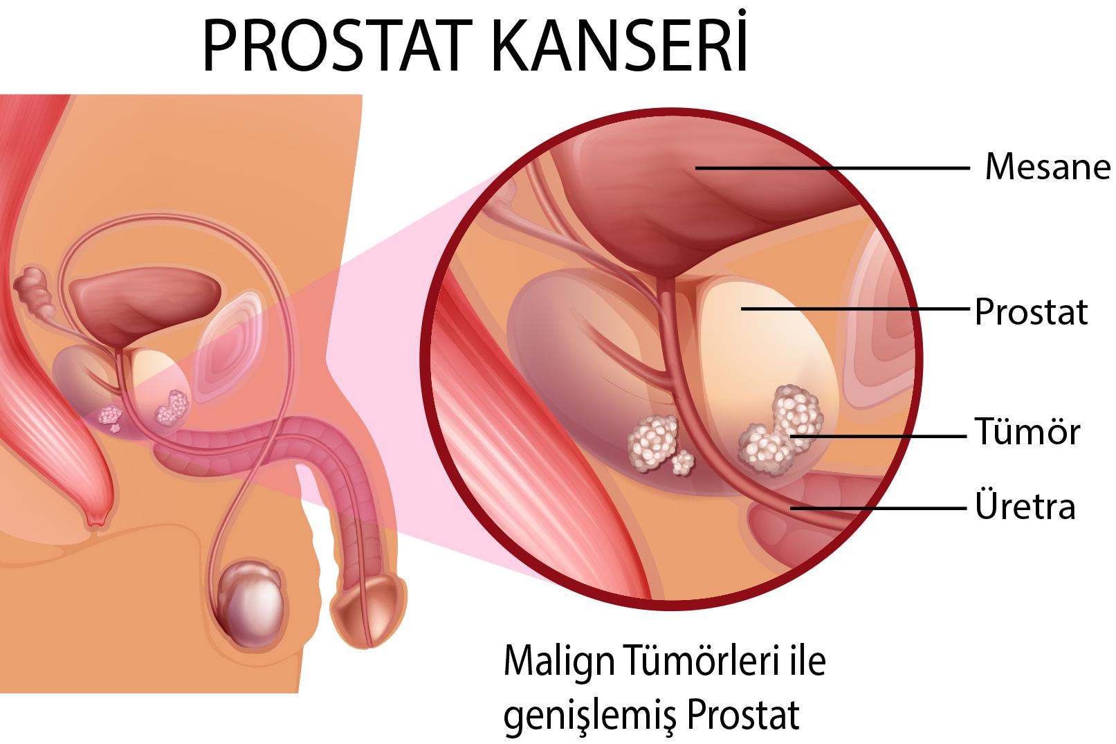 prostat kanseri, prostat kanseri tedavisi, prostat kanseri nasıl tedavi edilir