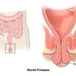 rektal prolapsus tanısı, rektal prolapsus tedavisi, rektal prolapsus teşhisi